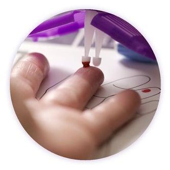 Detailfoto eines Bluttropfens aus einem Finger, der von der Spitze des Mitra-Microsamplers aufgenommen wird.