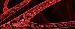 venous-whole-blood-vs-dried-blood-matrix