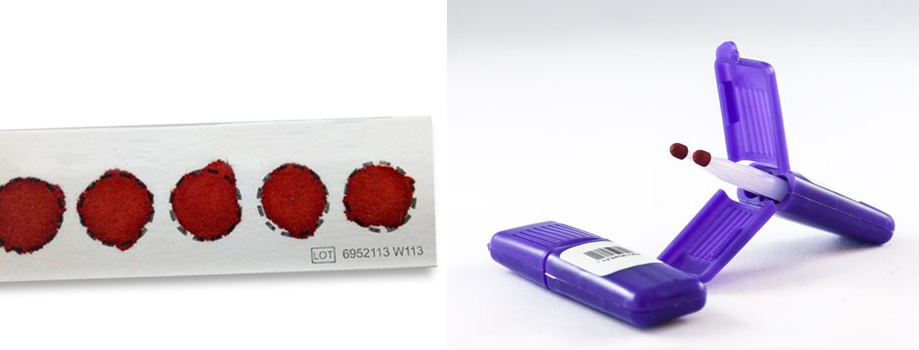 dbs-paper-alternative-vams-micro-blood-sampling