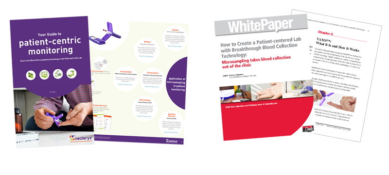 The patient-centric approach to healthcare is growing, download these 2 reports on lab considerations as well patient perspectives.  What are the benefits and pitfalls to switching blood collection methods?