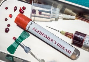 blood-test-for-alzheimers-disease