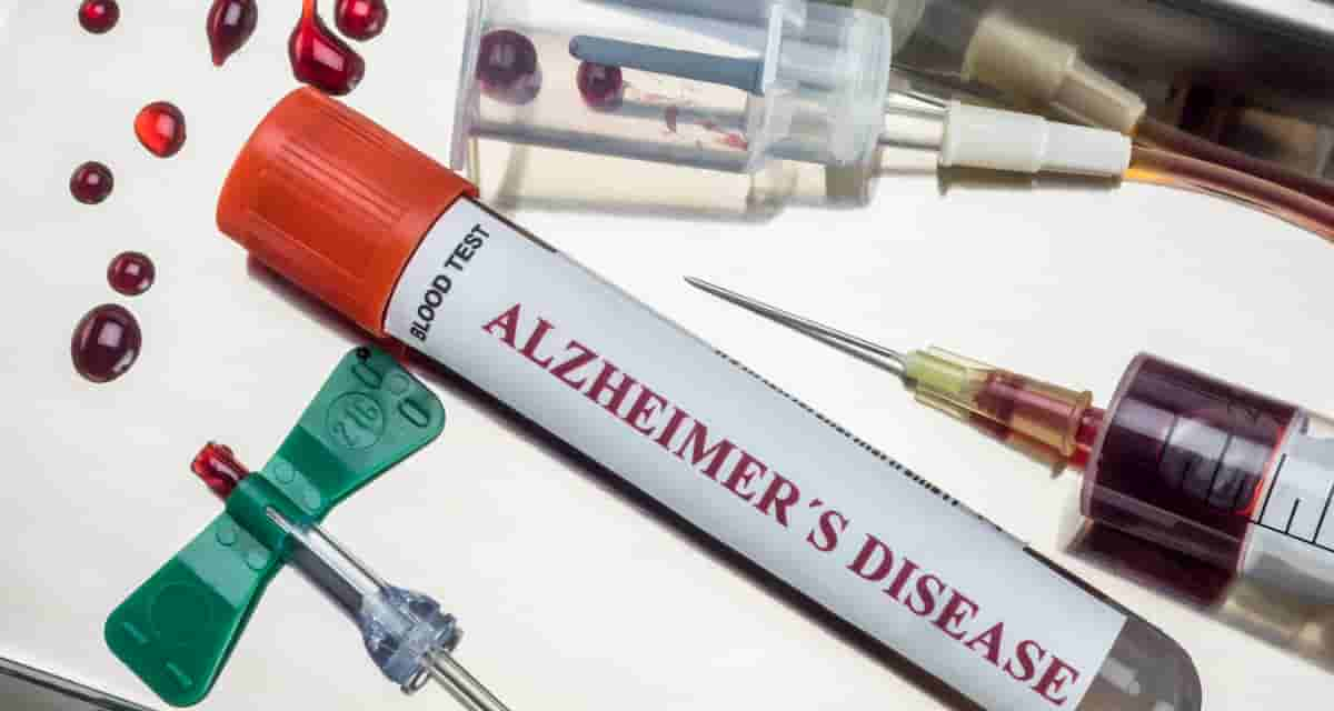 can a blood test for Alzheimer's disease provide clues for a cure?